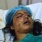مودی حکومت کشمیر میں پیلٹ گن کا استعمال بڑھا رہی ہے، ہیومن رائٹس واچ